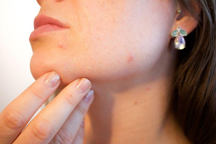 acne-1606765__480